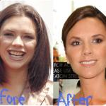 victoria-beckham-before-after-facial-cosmetic-treatments