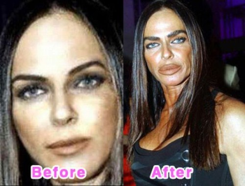 failure-Celebrity-Plastic-Surgery-Before-and-After
