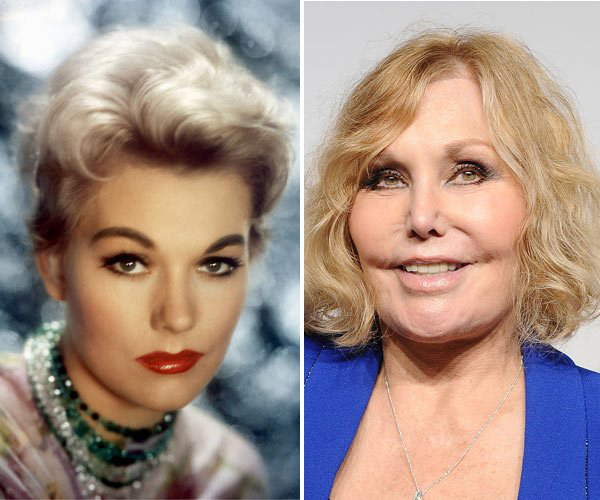 kim-novak-before-and-after-plastic-surgery-oscars-ftr