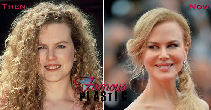 nicole-kidman-cheek-implants-cannes-2014