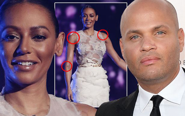 Mel-B-main hit husband hospital omg x factor